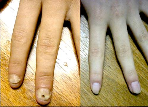 Corticosteroids are the mainstay of treating nail psoriasis 2