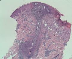 Herpes simplex - Wikipedia